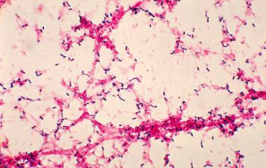 Streptococcus Pneumonia